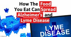 Alzheimer's and Lyme —Two Diseases Driven by Inappropriate Interventions in the Food Chain