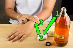 I lékaři považují tuto metodu za efektivní. Fig Juice, Garlic Pills, Pure Castor Oil, Natural Exfoliant, Warts, Salicylic Acid, Tea Tree Oil, Skin Problems, Home Remedies
