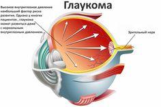 ГЛАУКОМА И КАТАРАКТА - ЛЕЧЕНИЕ ВОЗМОЖНО! Тем, кто страдает глаукомой и катарактой, рекомендуется проконсультироваться у глазного врача относительно сочетанной лазерной операции по поводу обоих заболеваний. По данной операции накоплен большой опыт, вмешательство дает очень хорошие результаты. На сегодня существуют новаторские комбинированные операции в области угла передней камеры глаза, показанные при начальной стадии глаукомы в сочетании с катарактой.