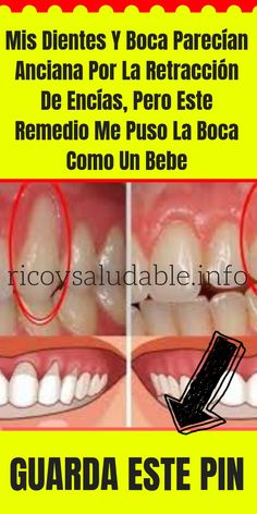 Dental Activities for Kids - Todo Sobre La Salud Bucal 2020 Matcha Benefits, Health Benefits, Health Tips, Healthy Teeth, Healthy Life, Cutting Wine Bottles, Bottle Cutter, Heart Attack Symptoms, Christmas Gifts For Girlfriend