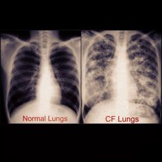 1000+ images about Cystic Fibrosis on Pinterest | Lungs ...