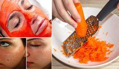 Pour réduire les cicatrices d'acné, pensez à cet ingrédient de votre cuisine !noté 3.8 - 36 votes Les cicatrices d'acné laissent sur notre peaux des traces dont on se passerait bien d'un combat vraiment harassant contre les boutons. Qu'elles forment des cratères plus ou moins profonds et réguliers, qu'elles s'apparentent à des piqûres profondes ou …