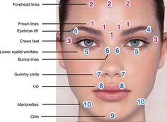 Botox Eyebrow Lift Injection Sites Migraine, <b>eyebrows</b> and need to on pinterest