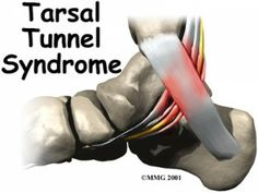 tarsal tunnel syndrome in foot