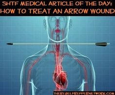 SHTF Medical Article of the Day: How to Treat an Arrow Wound