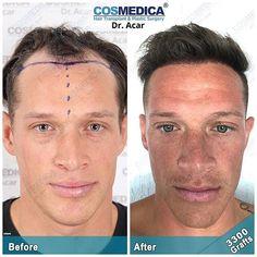 COSMEDICA Dr. Acar (@cosmedicaclinic) • Instagram-foto's en -video's Hair Transplant Results, People, Instagram, People Illustration, Folk
