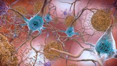 Scientists find more evidence that herpes could trigger Alzheimer's disease. When infected with herpes viruses previously linked to Alzheimer's neurons in both mice and lab tests quickly developed amyloid beta (Aβ) plaques thought to lead to Alzheimer's. Tau Protein, Signs Of Alzheimer's, Growth Factor, Growth Hormone, Blood Test, Reduce Inflammation, Alzheimers, Exercises, Natural Remedies