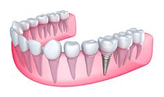 There are a lot of people in the world who do not have all their teeth and are looking for solutions such as dental implant to fix the problem. The main area of grouse for these people is the way that they look having lost a tooth or some teeth and they wish to fix it.