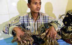 """Por causa das deformidades, Abul ficou conhecido como """"homem-árvore"""" e hoje, finalmente, está passando pelos preparativos para a cirurgia que removerá os """"galhos""""."""
