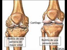 Osteoartritis: resuelve tus dudas
