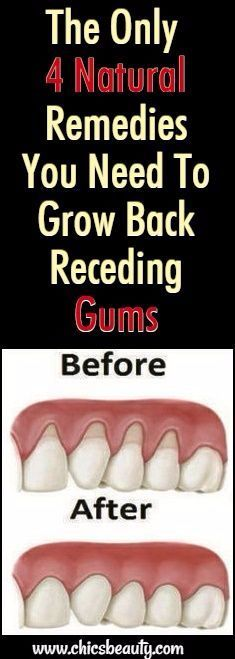 The Only 4 Natural Remedies You Need To Grow Back Receding Gums There are a lot of reasons why gums recede and it can become quite a health problem if this happens. If you are experiencing receding gums then you have found a great article to read Gum Health, Teeth Health, Oral Health, Dental Health, Dental Care, Healthy Teeth, Natural Health Tips, Natural Health Remedies, Natural Cures
