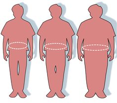 Successful weight loss following obesity surgery and the perceived liability of morbid obesity.