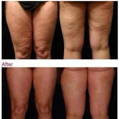 Cellulitetreatmentprices Defining Gel Toenail Fungus Treatment Cellulite Awesome Amazing