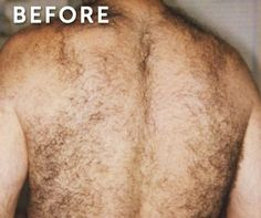 Laser Hair Removal in New Jersey for Women and Men #laser #hair #removal, #bikini #hair #removal, #laser #hair #reduction, #brazilian #laser #hair, #back #laser #hair http://energy.nef2.com/laser-hair-removal-in-new-jersey-for-women-and-men-laser-hair-rem