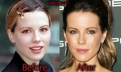 Kate Beckinsale Plastic Surgery, Before and After #katebeckinsale #botox #nosejob #rhinoplasty #beforeafter #hollywood #celebrity #plasticsurgery #celebrityplasticsurgery #beauty #botox #actress
