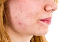 Acne may be caused by an imbalance of skin bacteria   http://sibeda.com/acne-may-be-caused-by-an-imbalance-of-skin-bacteria/