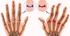 L'MSM Naturale risolve problemi articolari (artrite, cartilagini, artrosi, osteoporosi) muscolari, intestinali, cutanei, intossicazioni, parassiti, unghie e capelli fragili