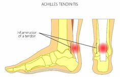 How to tell if your achilles tendon is sore! www.newleaf-chiropractic.com 600 S. Airport Rd.  #Achilles Tendons #4 steps to heal #chiropractic care #Longmont, CO