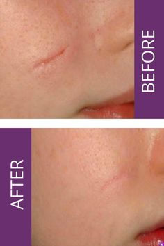 Why undergo the expense and trouble of hiding your scars with make-up and clothes when you'll be able to scale back them simply and quick with our Laser Mild System.It is simpler than you assume with our Palomar ICON Laser scar therapy that's snug with little to no downtime. Alternative Treatments, Being Ugly, Snug, Scale, Therapy, Make Up, Clothes, Weighing Scale, Makeup