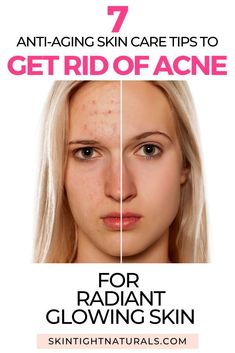 Un-Pimple Your Life! How to Reverse Acne Problems Fast! - Skin Tight Naturals group beauty, hair, na Back Acne Treatment, Natural Acne Treatment, Anti Aging Skin Care, Natural Skin Care, Natural Beauty, Lotion, Skin Secrets, Acne Breakout, How To Get Rid Of Acne