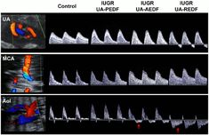 Figure Doppler ultrasound data of the study individuals. Vascular Ultrasound, Ultrasound Sonography, Ultrasound School, Ultrasound Technician, Carotid Artery, A Day To Remember, Cardiology, Physiology, Study