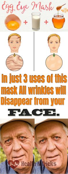 Wrinkles Will Disappear in 3 Minutes From Your Face