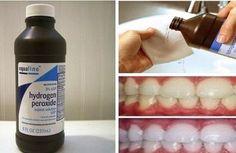 7 bonnes raisons pour vous d'avoir du peroxyde d'hydrogène à la maison toujours