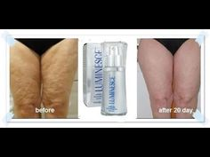 LUMINESCE Anti-Aging Serum. This is  a cell rejuvenation system that uses stem cells from adults, typically from the fat in the belly. Amazing Results! No other product like it on the market!  Check out my website for more information and ordering,  www.bambambeauty.jeunesseglobal.com