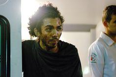 Rapaz atingido com cinzeiro vai processar Copacabana Palace