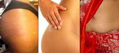 Ever suffered from stretch marks that make your skin look visibly red and damaged? DESIblitz looks at some possible remedies and cures that ...