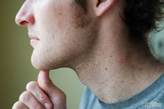 How to Cure TMJ with Jaw Exercises: 5 Steps - wikiHow Keep that jaw relaxed and ready....