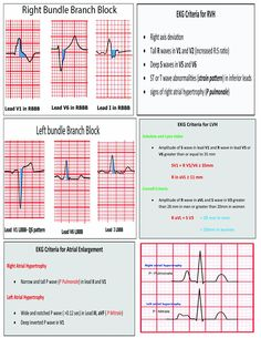 12 Lead EKG Pocket Card: APRN World: 9781941004067: Amazon.com: Books Ekg Interpretation, Critical Care Nursing, Nursing School Notes, Cardiac Nursing, Nursing Information, Nursing Tips, Pocket Cards, Nurse Life, Nursing Students
