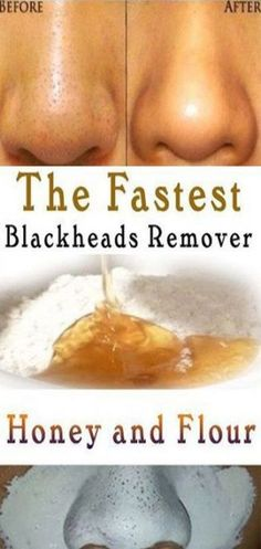 5 best ways to naturally remove armpit hair - st . - 5 best ways to remove armpit hair naturally – style novi – - Blackheads On Cheeks, Remove Blackheads From Nose, Remove Acne, Removal Of Blackheads, Remedies For Blackheads, Beauty Hacks Blackheads, Remove Stains, Facials For Blackheads, How To Clear Blackheads