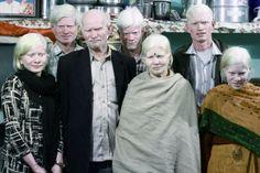 La plus grande famille albinos du monde