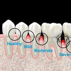 Stages - This is a great visual aide to understand how periodontal disease progresses.