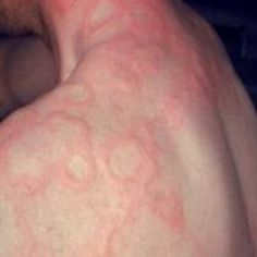 61 Best hives images in 2015 | Chronic hives, Urticaria