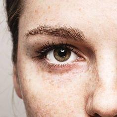 Hautpflege: Was hilft bei Pigmentflecken?