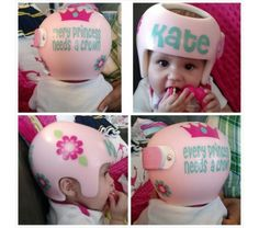 Tons Of Colors Plagiocephaly Helmet BowsSee Listing Photos For - Baby helmet decals