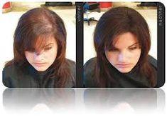 Ak sa niekto sťažuje na riedke vlasy, mal by si spraviť túto masku a viac sa sťažovať nebude - MegaRecepty.sk Aerial Silks, Olympia, Detox, Health Fitness, Hair Beauty, Makeup, Forks, Hair, Hair Care