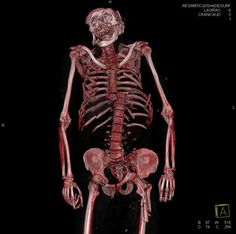 the virtual autopsy of a man run over by a train, look at the severed spine and extreme damage to the facial area of skull.
