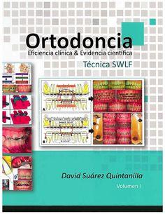 Eficiencia clínica y evidencia científica en ortodoncia : técnica SWLF…