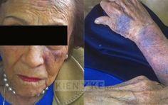 La Caja de Pandora: Violencia intrafamiliar: Denuncian que mujer de 86...
