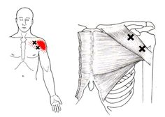 Pectoralis Major | Trigger Point & Referred Pain Guide