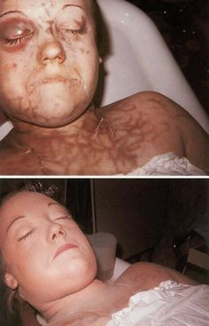 Before and after makeup is applied to a deceased female.