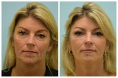 This 50-year-old female is shown fifteen months following an upper and lower blepharoplasty, fat transfer, and facelift. Fat Transfer, Facial Rejuvenation, Surgery Center, Hair Transplant, Plastic Surgery, Cosmetics, Female, Plano Texas, Chapel Hill