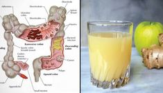 Most experts would agree that a regular colon cleanse program can ensure a better way of living. They believe that other forms of colon cleansing such as colon Colon Cleanse Detox, Smoothie Cleanse, Body Cleanse, Cleanse Diet, Cleansing Smoothies, Health Cleanse, Intestino Permeable, La Constipation, Celery Juice