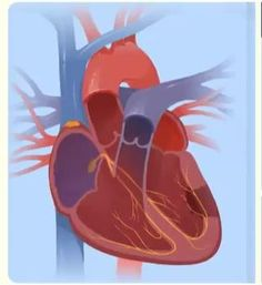 Here is a clip from the CardioVisual app giving a simple explanation for ventricular fibrillation. Biology Facts, Biology Lessons, Teaching Biology, Basic Anatomy And Physiology, Medical Photos, Cardiac Nursing, Medical Laboratory Science, Medicine Student, Atrial Fibrillation