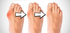 Gout is arthritis caused by deposition of uric acid crystals in and around the joints. The article is fully described on gout causes and treatment. It can cause an attack of sudden burning pain, st… Bunion Remedies, Home Remedies, Natural Remedies, Get Rid Of Bunions, Bunion Relief, Hammer Toe, How To Remove, How To Get, Skin Care