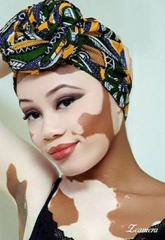 Vitiligo doesn't take away her beauty. Pink Eyes, Poses, Pretty People, Beautiful People, Perfect People, Real People, Body Positivity, Unique Faces, Interesting Faces