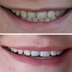 I thought I would share with you my Teeth Whitening story with Smile Brilliant. I would love for you to see the results and enter the giveaway! Senior Dating Sites, Smile Teeth, Teeth Whitening, Giveaway